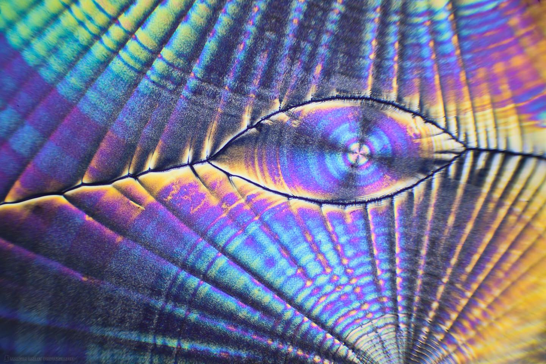 The Magic Eye (Vitamin C Crystals 40X 32 Frames)