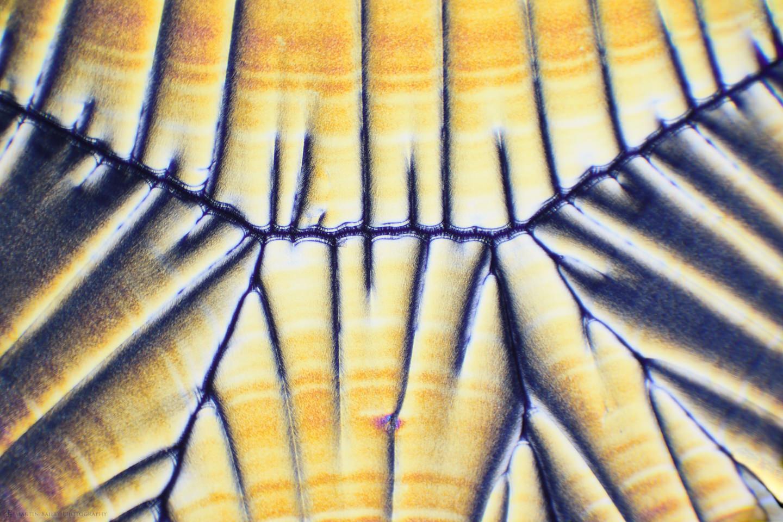 Ascorbic Acid Crystals (Vitamin C 100X 15 Frames)