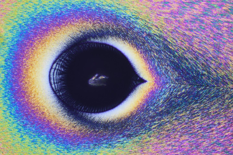 The Eye (Vitamin C Crystals 400X 13 Frames)